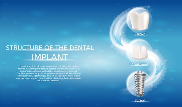 Realistic image structure of the dental implant Premium Vector