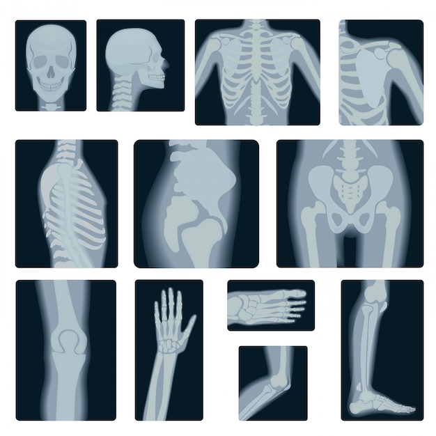 Realistic set of x-rays shots Premium Vector
