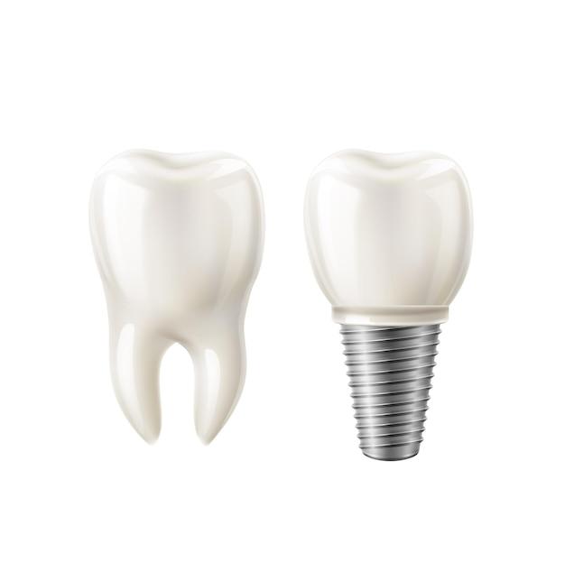 현실적인 하얀 치아와 치과 임플란트 세트. 프리미엄 벡터