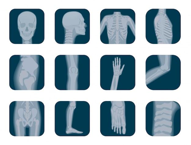 Realistic x-ray skeleton icons set Premium Vector