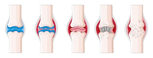 Rheumatoid arthritis in human body illustration Free Vector