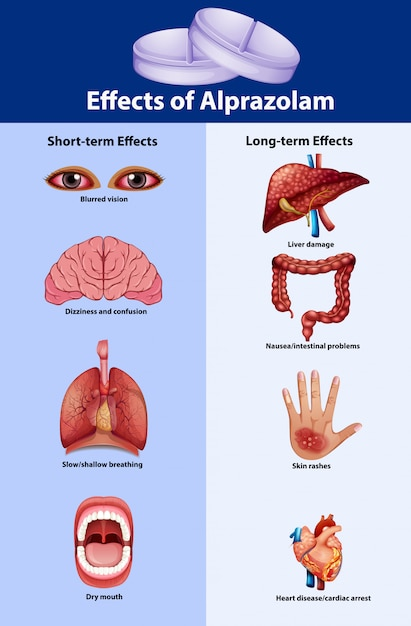 Science poster for effects of alprazolam Free Vector