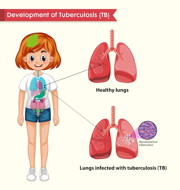 Scientific medical infographic of tuberculosis Free Vector