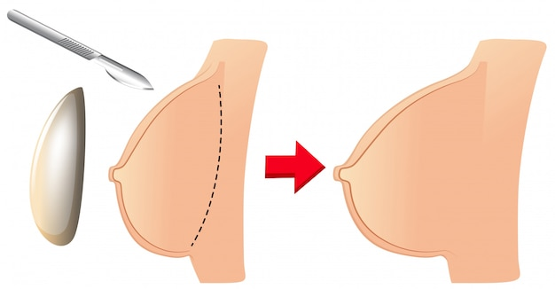 A set of breast augmentation Free Vector