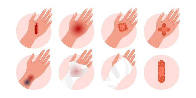 Set of physical injury human hand with contusion, bruise open cut, wounds isolated on a white background. Premium Vector