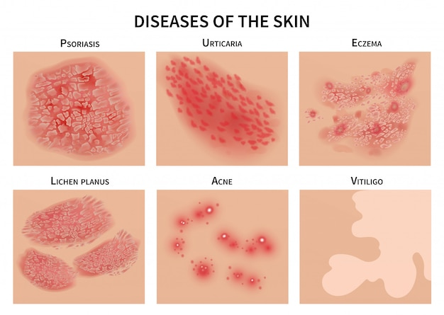Skin diseases. derma infection, eczema and psoriasis. dermatology  illustration Premium Vector