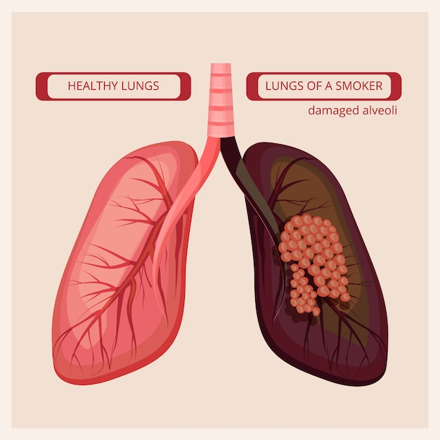 Smoker lungs. smoke human damage lung cancer vector medical infographic pictures Premium Vector