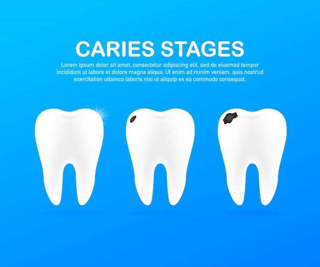 Стадия развития кариеса. концепция стоматологической помощи. здоровые зубы. Premium векторы