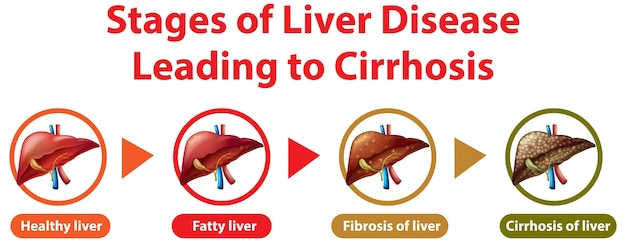 Stages of liver disease leading to cirrhosis Free Vector
