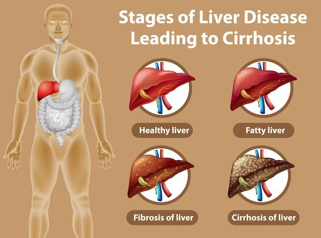 Fasi della malattia del fegato che portano alla cirrosi Vettore gratuito