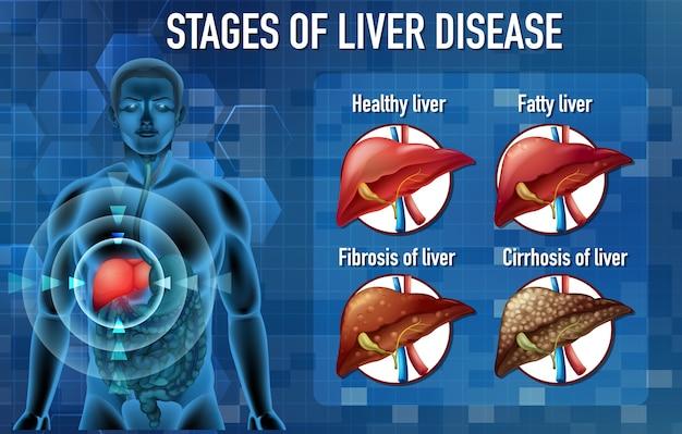 Fasi della malattia del fegato Vettore gratuito
