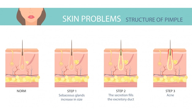 人間の皮膚のにきび形成の段階。 Premiumベクター