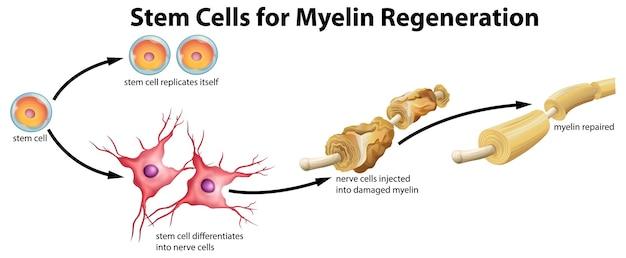Stem cell for myelin regeneration Free Vector