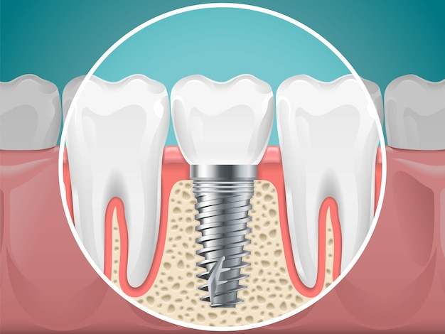 Stomatology illustrations. dental implants and healthy teeth. vector health tooth and implant stomatology, dentistry installation and fixture Premium Vector
