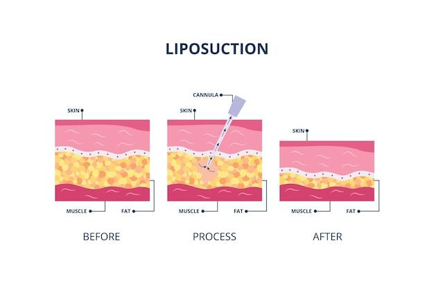 吸引補助脂肪吸引手順-脂肪吸引、白い背景の図に皮膚に挿入された中空管。肌下の体脂肪バナー。 Premiumベクター