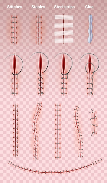 Surgical suture stitches realistic set of images on transparent  with different shapes of medical stitching Free Vector