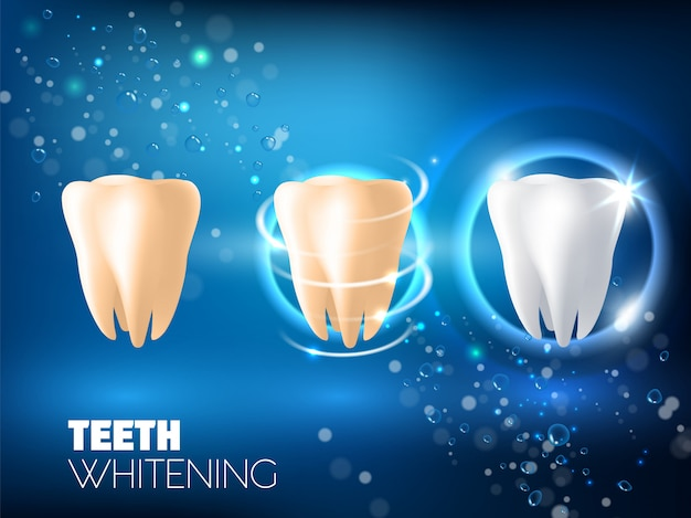 Teeth whitening ad vector realistic illustration Premium Vector