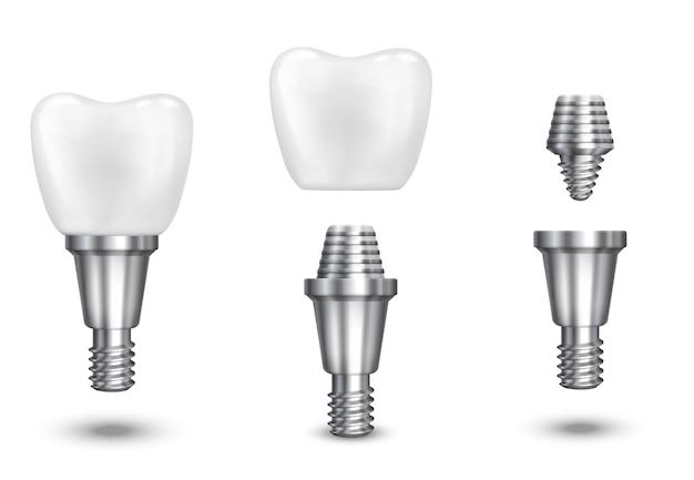 歯のインプラント。インプラント歯科および健康歯、健康なインプラント、ベクトル図 無料ベクター