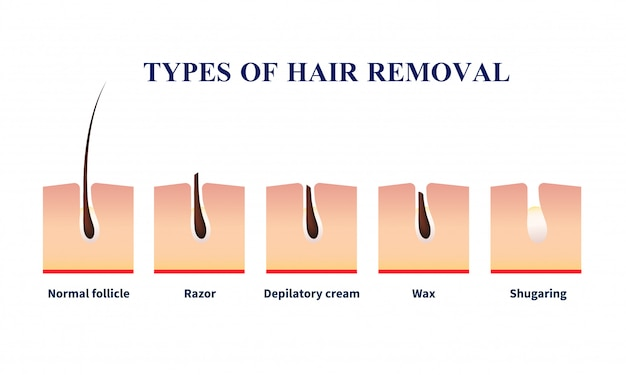 Types of hair removal illustration Free Vector