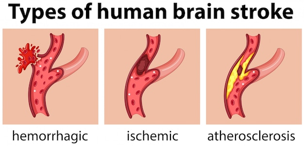 Types of human brain stroke Premium Vector