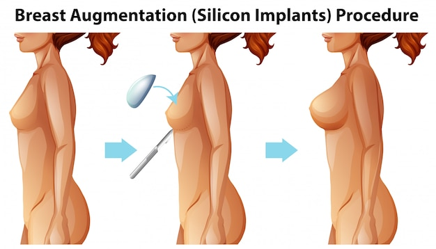 A vector of female breast implants Free Vector