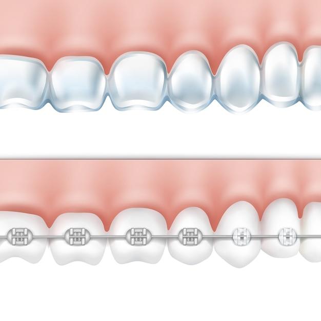 金属ブレースと白い背景で隔離のホワイトニングトレイの側面図とベクトル人間の歯 無料ベクター