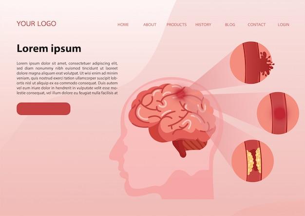 Web banner template. stroke disease. Premium Vector