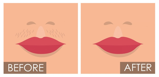 Woman face before and after the depilation Free Vector