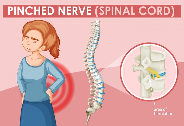 Woman with pinched nerve Free Vector