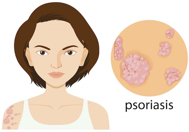 Woman with psoriasis on poster Free Vector