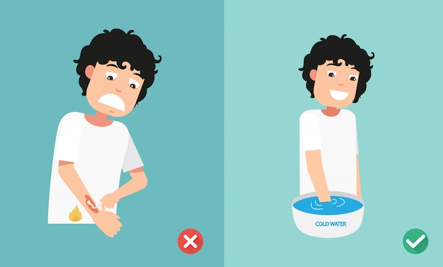 Wrong and right ways first aid emergency treatment skin burn,illustration Premium Vector