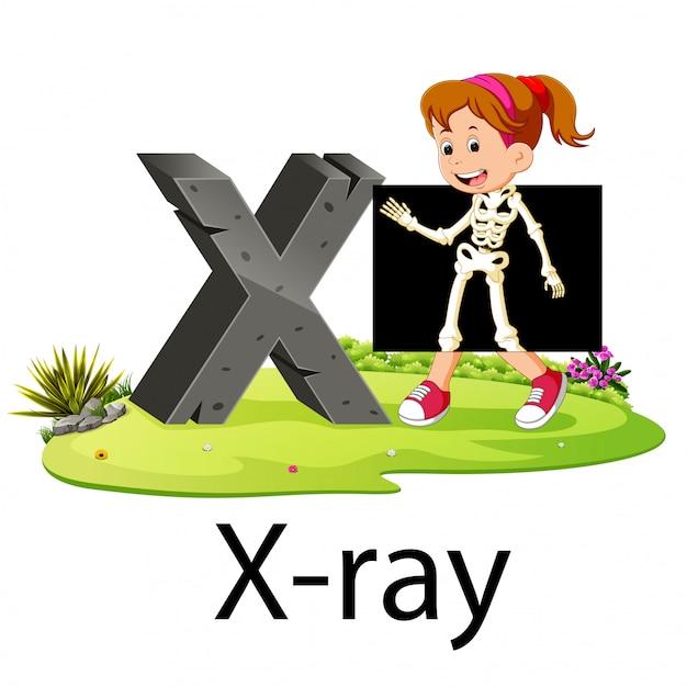 横にいいアニメーションのあるx線用アルファベットx Premiumベクター