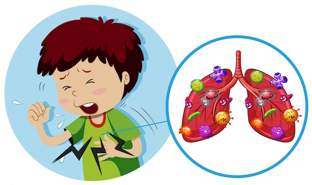 Young boy with bacteria on lungs Premium Vector