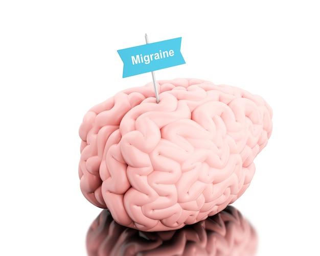 3d cerveau avec un panneau et mot migraine. Photo Premium