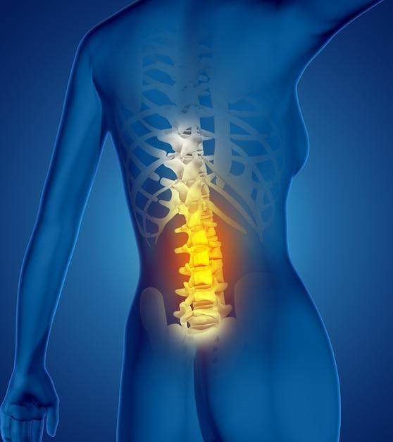 3d rendent d'une figure médicale femme avec dos en surbrillance Photo gratuit