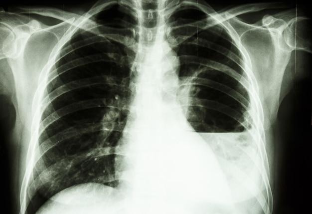 Abcès pulmonaire Photo Premium