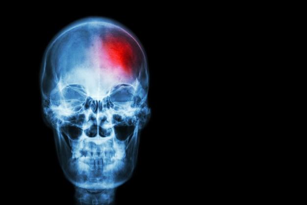 Accident vasculaire cérébral (accident vasculaire cérébral). film crâne de radiographie de l'homme avec la zone rouge à la tête. Photo Premium