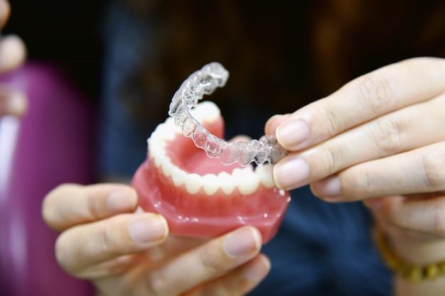 Accolades Ou Aligneur Inivisalign. Conseils De Dentiste Sur La Façon Dont L'orthodontie Invisible Fait De Belles Dents En Clinique Dentaire. Photo Premium