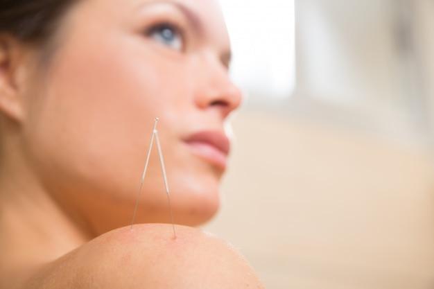 Aiguille D'acupuncture Piquant Sur L'épaule De La Femme Photo Premium