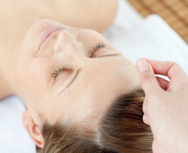 Aiguilles d'acupuncture sur la tête d'une jolie femme Photo Premium