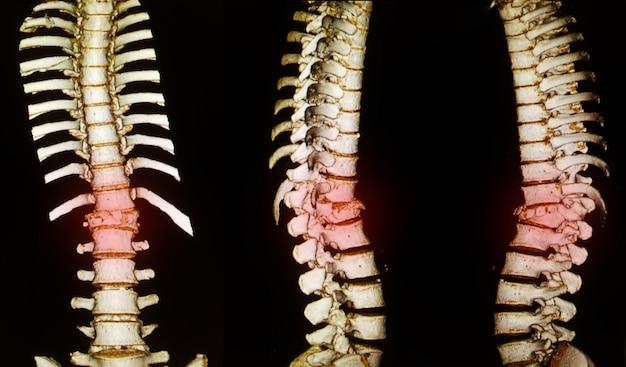 Anatomie disque de colonne vertébrale squelette humain afficher la fracture. Photo Premium