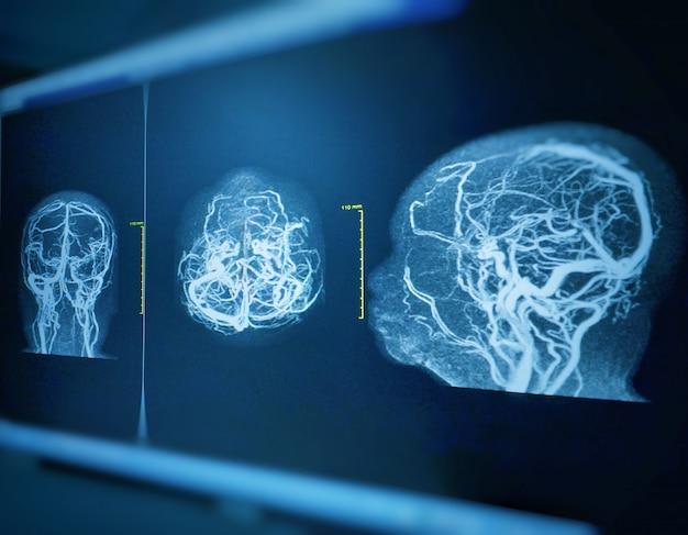Arm et mrv du cerveau histoire: une femme de 61 ans atteinte d'une hémorragie intracrânienne. Photo Premium