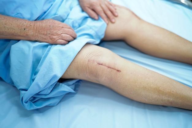 Asiatique femme âgée ou âgée âgée montre ses cicatrices chirurgicales arthroplastie totale du genou Photo Premium
