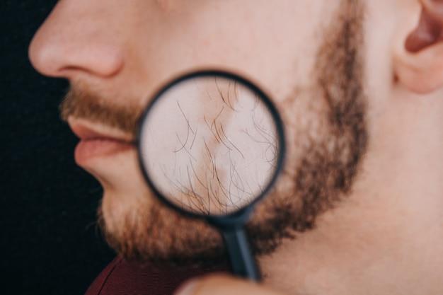 Barbe sous une loupe. les cheveux sur le visage d'un homme se bouchent. Photo Premium