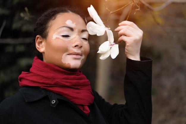 Belle fille africaine avec vitiligo debout dans la rue renifle des fleurs de printemps. Photo Premium
