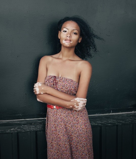 Belle jeune femme brune atteinte du vitiligo Photo Premium