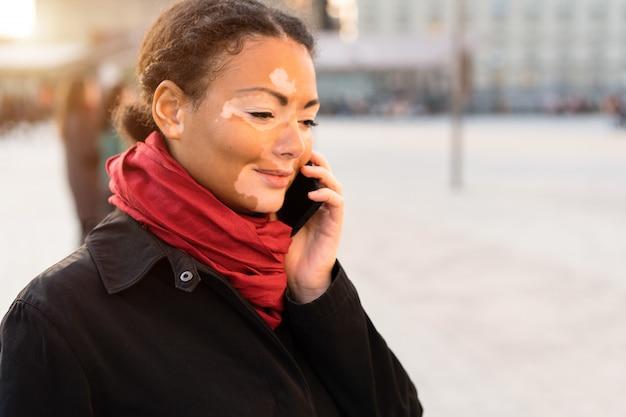 Une belle jeune fille d'origine africaine avec le vitiligo debout sur la rue de la ville au printemps chaud habillé manteau noir Photo Premium