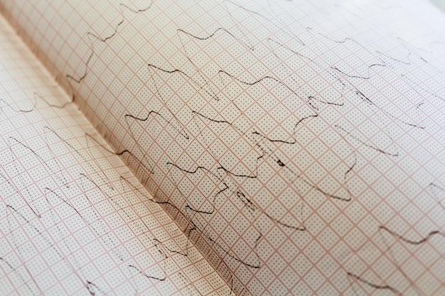 Bouchent la vue d'un papier d'électrocardiogramme. Photo Premium