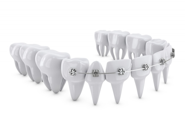 Brackets dentaires Photo Premium