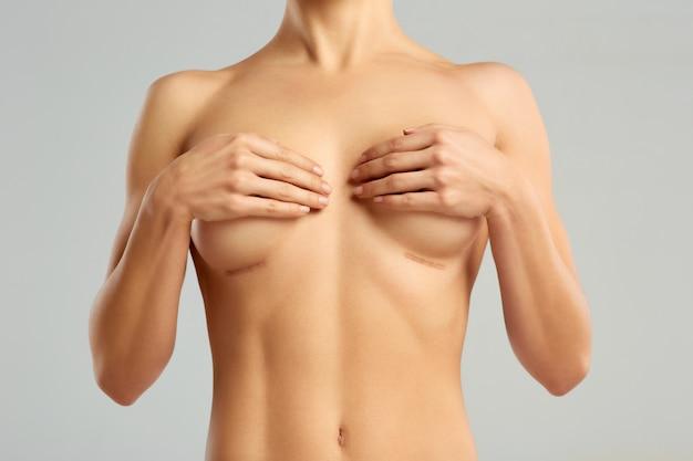 Chirurgie Plastique Du Sein Féminin Photo Premium